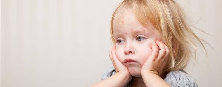 ילדה עצובה עם אבעבועות רוח על הפנים